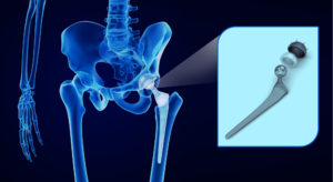 Defective Hip Implant Attorney
